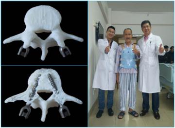 3D打印模拟与术后康复